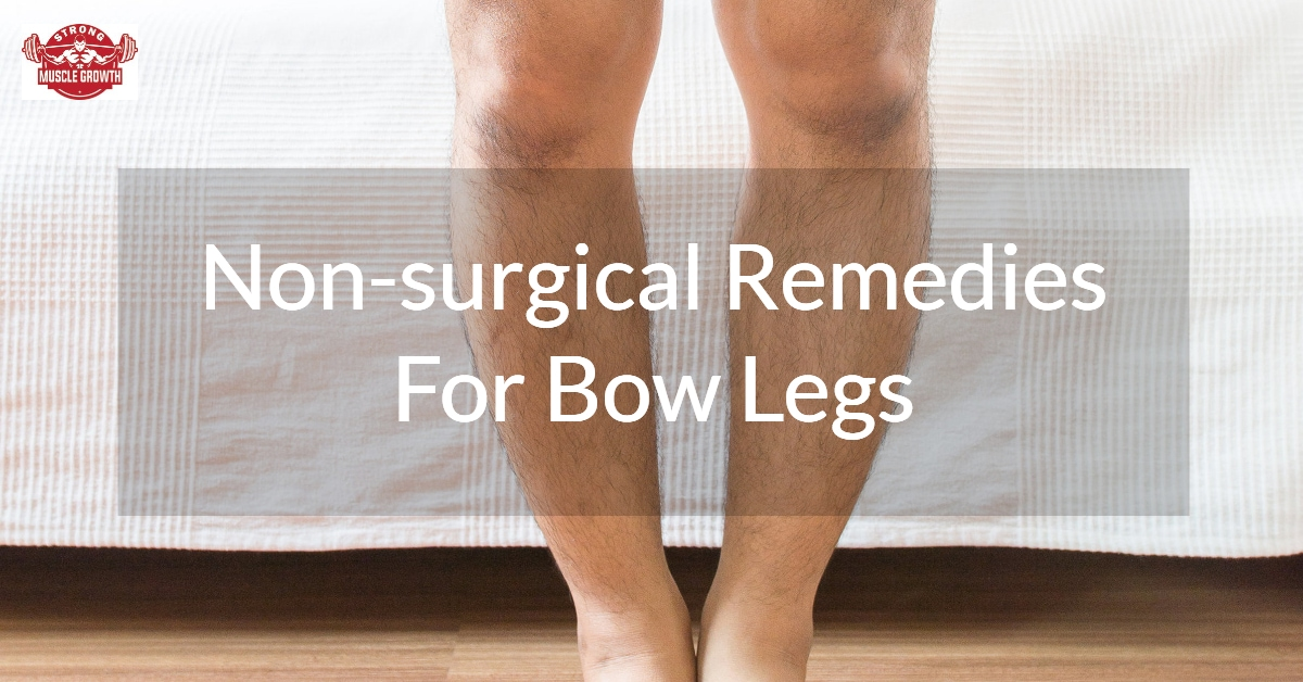 Non-surgical-remedies-for-Bow-Leg